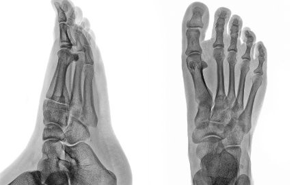 X-rays of a foot