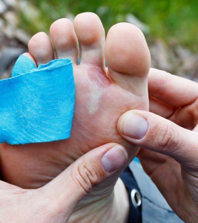 Blisters-Treatment