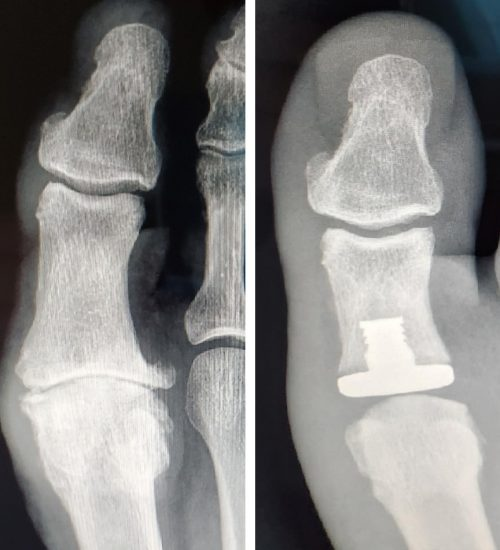 Surgical-Care-Before-After