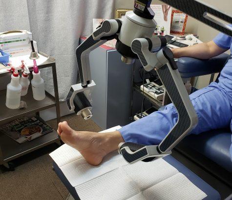 erchonia laser for heel pain